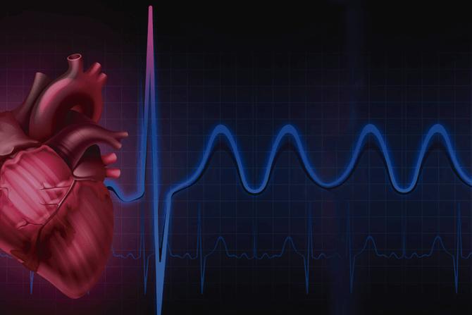 Salud cardiaca: arritmias